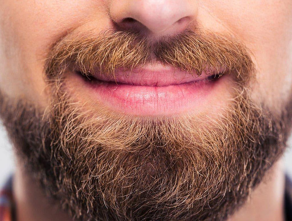 Transplante de barba