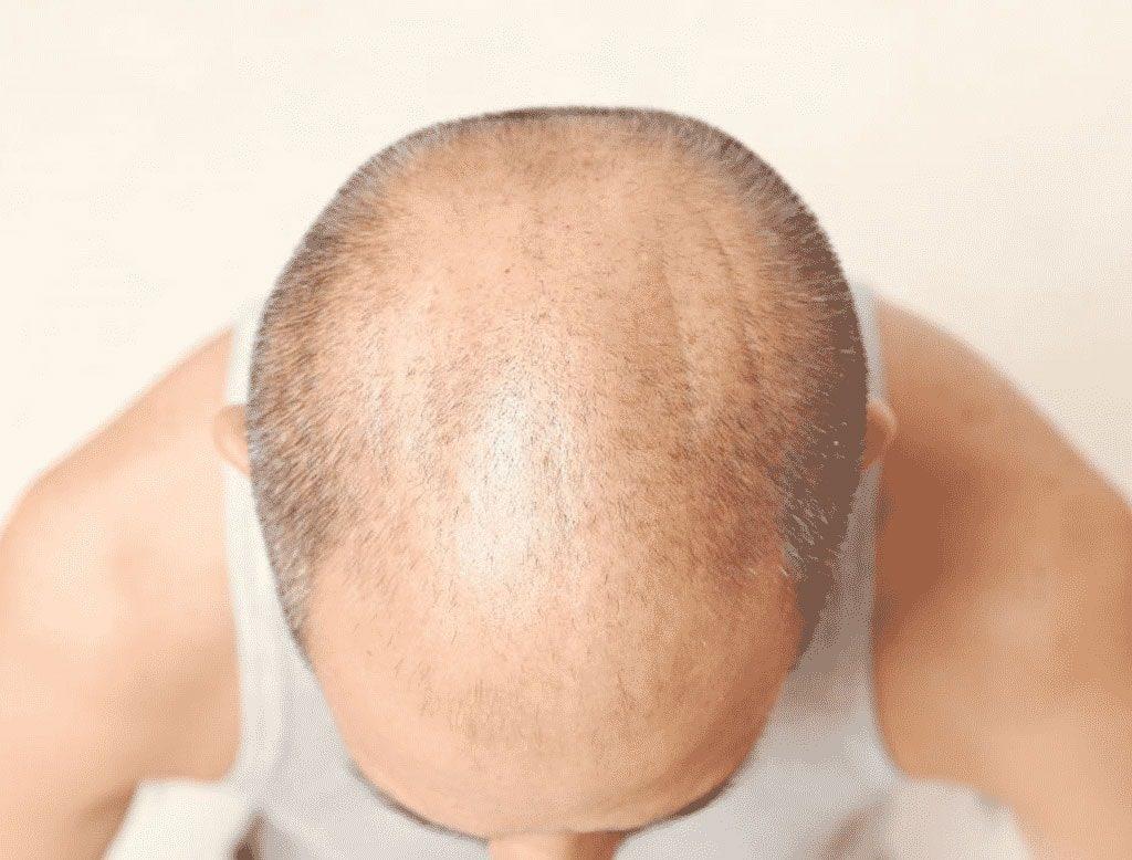 Transplante de cabelo